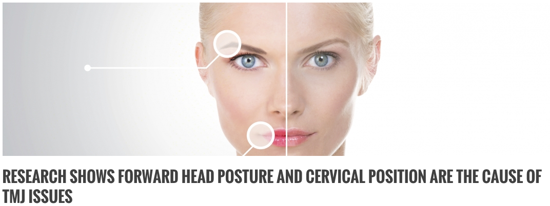Forward Head Posture & Cervical Spine Linked To TMJ Disorders